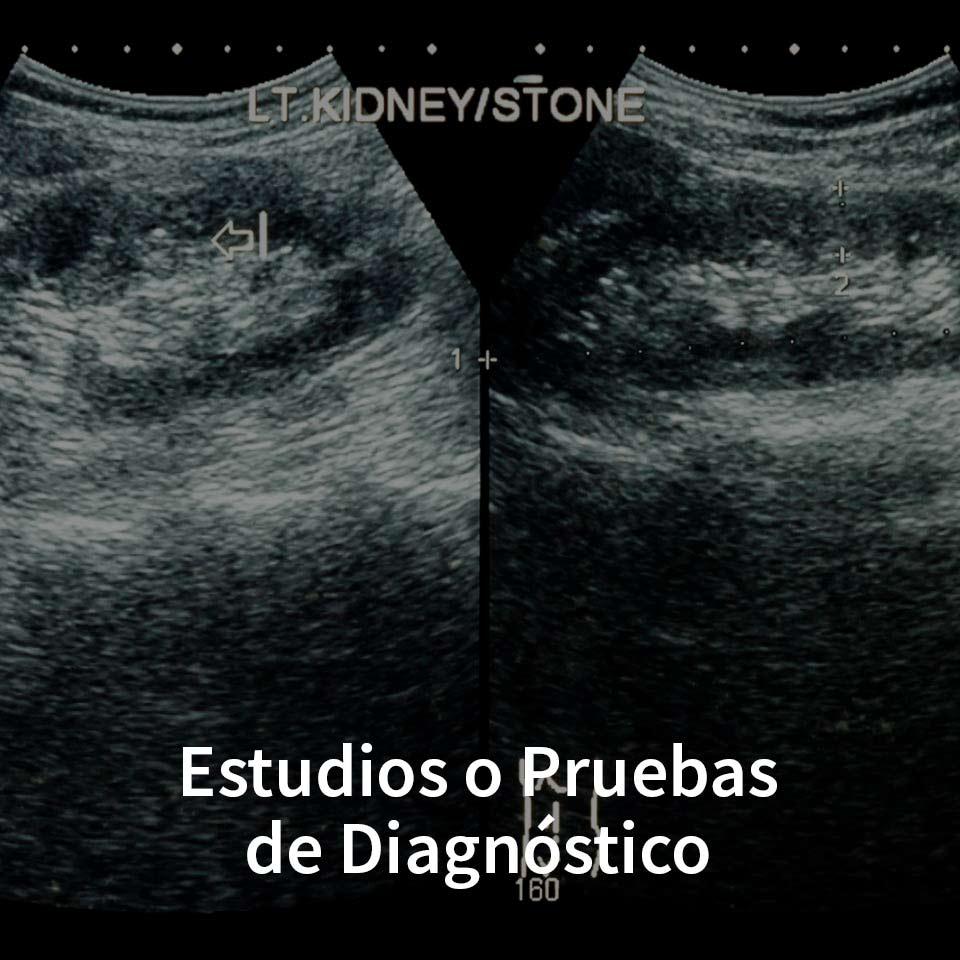 Estudios o Pruebas de Diagnóstico