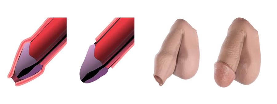 Circuncisión en Culiacán