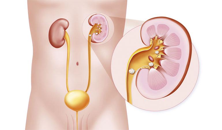 Litiasis urinaria en Culiacán